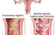 Hiện tượng viêm âm đạo là gì?