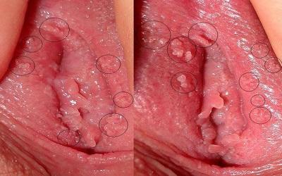 Triệu chứng của bệnh sùi mào gà ở nữ giới là gì?