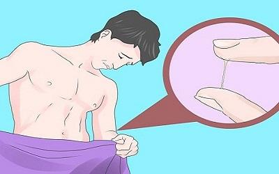 bệnh ở bộ phận sinh dục nam giới